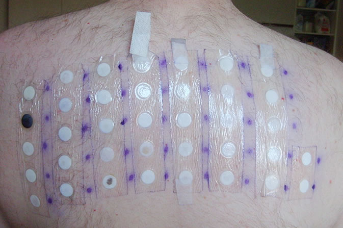 Skin Allergy (patch test)